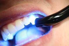 If you are looking for a composite filling, to bring a compassionate, caring and most of all professional. We will provide you with a magical experience with all the latest dentist technologies.