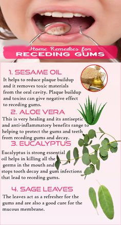 Gum recession is often the first sign of gum disease, a condition that can get very serious, reason tooth loss and disturbs overall health. Gum Health, Dental Health, Oral Health, Dental Care, Health Care, Tongue Health, Health Diet, Remedies For Tooth Ache, Healthy Teeth