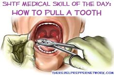 SHTF Medical Skill of the Day: How to Pull a Tooth      Need A tooth pulled right now, I'll read this tonight.