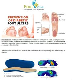 Diabetic insole for prevention of pressure ulcer, foot pressure distribution, diabetic foot pain relief...