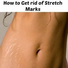 Natural Remedies to Get rid of Stretch Marks