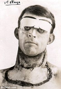 Lothar von Richthofen (brother of the Red Baron) sustained ...  Walter Yeo Skin Graft