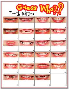 Guess Who? Tooth Edition - totally great idea for open house, parent night, conferences
