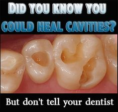 TEETH-CAVITIES-HEAL-NATURALLY