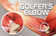 Today, we're going to be covering what golfer's elbow is, what causes people to have it, the symptoms and how to get rid of golfer's elbow. Golfers Elbow Exercises, Arm Exercises, Swollen Knee, Knee Swelling, Golfers Elbow Treatment, Elbow Pain, Muscle Anatomy, Tennis Elbow, Nerve Pain