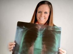 Taylor Bell - diagnosed at 21.   Here Now - Lung cancer survivor still battling disease's stigma