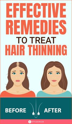 Hair Thickening Remedies, Thinning Hair Remedies, Natural Hair Growth Remedies, Home Remedies For Hair, Hair Loss Remedies, Hair Fall Remedy, Hair Growing Tips, Long Hair Tips, Thin Hair Tips