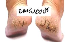 how to fix dry cracked heels treatment permanently naturely and best homemade Vaseline for crack heals and foot finger urdu hindi phati arion ka ilaj Cracked Heels Treatment, Dry Cracked Heels, Cracked Feet, Best Foot Cream, Health And Beauty Tips, Vaseline, Fungi, Lotion, Beauty Hacks