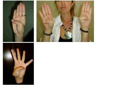 Horizontal thumb sign of hypermobility syndrome (EDS III)