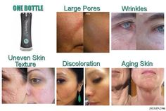 ONE product, NeriumAD! Corrects everything from acne, dark spots, stretch marks, wrinkles, YOU NAME IT! This stuff works! Bye Bye Botox! www.heathernix.nerium.com