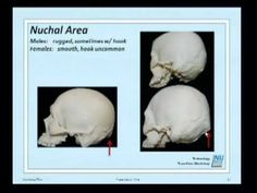 Forensic Anthropology 2011 : 02 : Determination of Biological Sex - YouTube