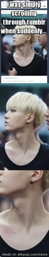 OMG fircken hickeys hot as hell! (this was by allkpop including the phrase)