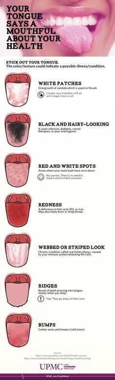 Next time you're in front of the mirror, check out your tongue - it can tell you a lot about your health!