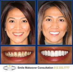A 2 Visit Smile Makeover from The Cosmetic Dentists of Austin Will Transform Your Smile and Your Life! Call 512.333.7777 for a free consult!  #Smile #AustinCosmeticDentist #AustinCosmeticDentistry #BestCosmeticDentist #Dentist #AustinDentist #DentalMakeover #ATX #Austin #CosmeticDentist #CosmeticDentistry #PicOfTheDay  #love #PhotoOfTheDay #2VisitSmileMakeover #Smilemakeover #AustinSmileMakeover #AustinVeneers  #DentalVeneers #PorcelainVeneers #PorcelainBridges #DentalBridges