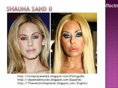 27- Plastic Surgery Fail (before after) Botched Plastic Surgery, Bad Plastic Surgeries, Plastic Surgery Gone Wrong, Plastic Surgery Photos, Celebrity Plastic Surgery, Shauna Sand, Under The Knife, Celebrity Faces, Photoshop