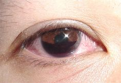 Hyphema describes is a collection of blood inside the anterior chamber of the eye(between the cornea and the iris). The blood may cover part or all of the iris and the pupil, and may partly or totally block vision in that eye. Hyphema is usually caused by trauma to the eye, though other conditions may cause hyphema as well.