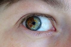 Sometimes a person's eyes are different colors and other times just part of one eye is a different color, as in the picture