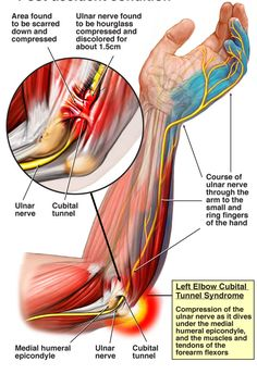 Cubital tunnel syndrome- compression of the ulnar nerve as it dives under the me. - Health and wellness: What comes naturally Muscle Anatomy, Body Anatomy, Elbow Anatomy, Occupational Therapy, Physical Therapy, Cubital Tunnel Syndrome, Elbow Pain, Tennis Elbow, Hand Therapy
