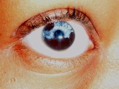 Partial/Sectoral heterochromia — part of one iris is a different color from its remainder.