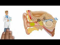Système auditif - YouTube oreille, surdité