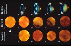 cataract grading scale for NS, cortical, PSC