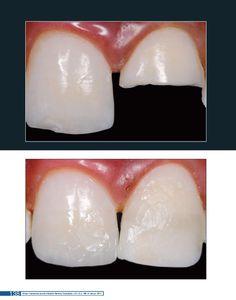 A revista Clínica - International Journal of Brazilian Dentistry (ISSN 1806-5015) é dirigida à classe odontológica e a profissionais de áreas afins. Destina-se à publicação deartigos de investigação científica, relatos de casos clínicos e de técnicas, e revisõesda literatura de assuntos de significância clínica, com periodicidade trimestral.