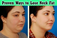 Effective and Proven Ways to Lose Neck Fat Fast - Medi Craze