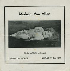 Medusa Van Allen (1908-1943) The Sunshine Girl After she was born, Van Allens bones never grew,(only her head) making it impossible to even sit up. She exhibited with Ripleys in the 1930s (pitch booklet)