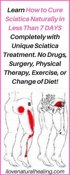 Learn How to Cure Sciatica Naturally in Less Than 7 DAYS Completely with Unique Sciatica Treatment. No Drugs, Surgery, Physical Therapy, Exercise, or Change of Diet!