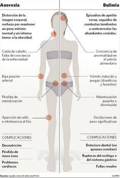 Diferencias entre la anorexia y la bulimia.