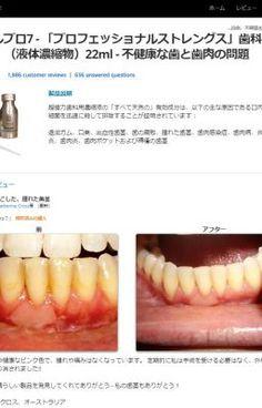 #wattpad #short-story √√√ 歯肉炎治療 - 歯肉炎の治療法 | JP √√√