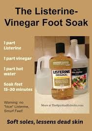 listerine foot soak - Google Search    I used 1 cup of apple cider vinegar, 1 cup of original Listerine, 2 cups of very warm water, soaked my feet for 15 min. You can see the dead skin and yes you can peel it off. I used a pumice stone for a min or so each foot and that's it. My feet feel really smooth now! I will do this again.