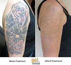 1155 Best Tattoo Removal In Progress images in 2019 | Grey wash ...