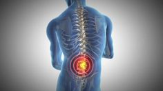 Case Study 121 - 31 Year Old Man Has Back Pain and Sciatica  Completely Relieved With Our Treatment #IllinoisBackInstitute #TotalBackPainRelief
