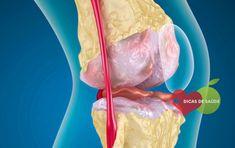 Artrose - O que é, Causas, Sintomas e Tratamentos 【ATUALIZADO】   #artrose #artrosecausas #artrosesintomas