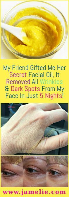 My Friend Gifted Me Her Secret Facial Oil , It Removed All Wrinkles & Dark Spots From My Face In Just 5 Nights! All women secretly desire for owning the flawless complexion. So, they often try face scrubs, body fairness creams, & other beauty serums that Belleza Diy, Tips Belleza, Beauty Skin, Health And Beauty, Beauty Makeup, Skin Tag Removal, Get Rid Of Blackheads, Pimples, Natural Health Tips
