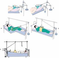 A, Cervical halter skin traction. B, Pelvic belt traction (skin). C, Pelvic sling (skin). D, Russell's traction. | HESI Case Studies