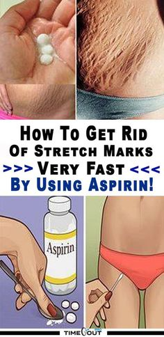 Natural Skin Remedies How to Get Rid of Stretch Marks Naturally Health And Beauty Tips, Health And Wellness, Health Tips, Wellness Tips, Health Fitness, Natural Cures, Natural Skin Care, Natural Beauty, Beauty Secrets