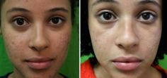 How can you get rid of black spots on face quickly due to pimples? Get insights on how to remove black spots from face naturally fast. The post explores more on home remedies for black spots, dark and marks due to pimples, acne scars and hyper-pigmentatio Laser Acne Scar Removal, Acne Scar Removal Treatment, Natural Acne Treatment, Acne Spot Treatment, Biotin Benefits, How To Remove Pimples, Acne Solutions, Acne Spots