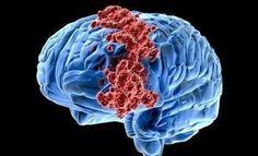 """Genetik araştırmaları kanser tedavisinin anahtarı olabilir. ABD'de 6 yıl önce """"genetiği değiştirilmiş bir virüs enjekte edilen hastanın"""" beynindeki tümörler yok olmak üzere. Doktorlar, sadece bir yıl ömür biçilen hastanın kemoterapi olmaksızın kanseri yendiğini açıkladı."""