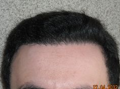 8 months after a hair transplant.  April 2012