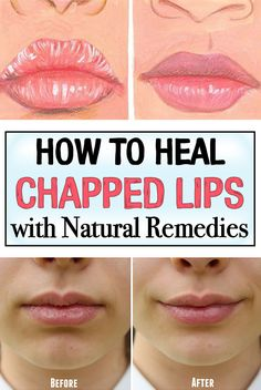 How to Heal Chapped Lips with Natural Remedies I totally dislike the sensation of chapped lips. Treat your chapped lips fast by trying these natural remedies. Dry Lips Remedy, Chapped Lips Remedy, Cleanser For Oily Skin, Lip Moisturizer, Beauty Hacks Eyelashes, Cracked Lips, Health And Beauty Tips, Models, Skin So Soft