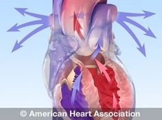 Over 80% of all strokes are preventable. Find out how you can safeguard you and your loved ones today. http://www.strokeassociation.org/STROKEORG/LifeAfterStroke/HealthyLivingAfterStroke/UnderstandingRiskyConditions/Blood-Pressure-and-Stroke_UCM_310427_Article.jsp#.VzoLYvkrKCi