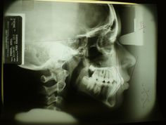 Discover Exciting Careers in Radiography