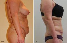 Plastyka brzucha zdjęcia przed i po