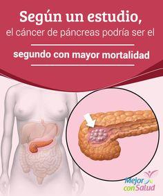 Según un estudio, el cáncer de páncreas podría ser el segundo con mayor mortalidad  El cáncer de páncreas está teniendo un incremento muy destacado en los últimos años. Según la OMS (Organización Mundial de la Salud),