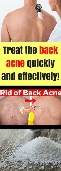 """Mainly acne appears on our face but it is not unusual to appear on some other parts of our bodies especially on our back. """"Bacne"""" or back acne is more common for men, and this inflammation of the skin first begins on the face and then it spreads on the back."""
