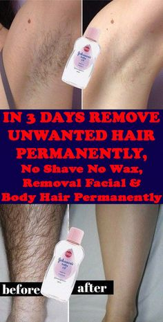Today I will share an amazing unwanted hair removal treatment with which you can remove facial and body hair permanently. This method is easy, effective and natural. #MaleUnwantedHairRemoval #BackHairRemoval #HairRemovalMethods #HairRemovalMachine Permanent Facial Hair Removal, Chin Hair Removal, Upper Lip Hair Removal, Underarm Hair Removal, Electrolysis Hair Removal, Natural Hair Removal, Remove Unwanted Facial Hair, Hair Removal Remedies, Hair Removal Methods