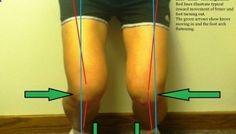 Bow Legs Correction - Shin Splints 101 - Effective Program for Shaping Your Legs