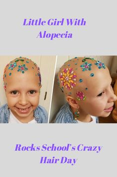 "When ""Crazy Hair Day"" at school rolled around, Gianessa Wride, who has alopecia, embraced her hair loss with the most amazing look. Crazy Hair For Kids, Crazy Hair Day At School, Crazy Hair Days, Wacky Hair, Bald Patches, Kids Suits, Little Girl Hairstyles, Beautiful Babies, Hair Looks"